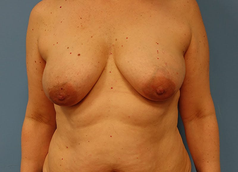 Breast Reconstruction - Implant Gallery - Patient 3833940 - Image 1