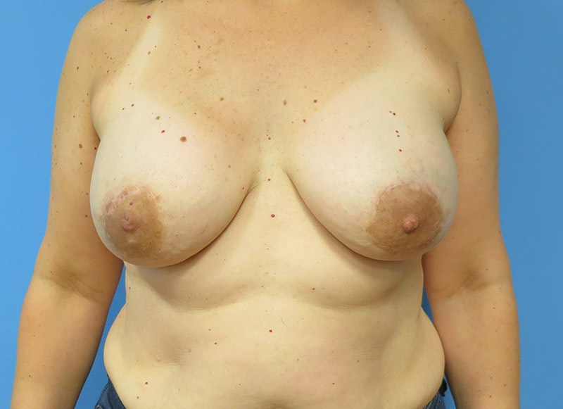 Breast Reconstruction - Implant Gallery - Patient 3833940 - Image 2