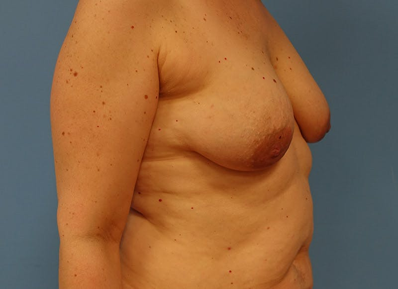 Breast Reconstruction - Implant Gallery - Patient 3833940 - Image 3