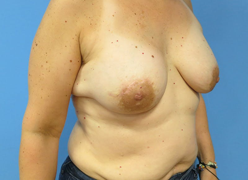Breast Reconstruction - Implant Gallery - Patient 3833940 - Image 4