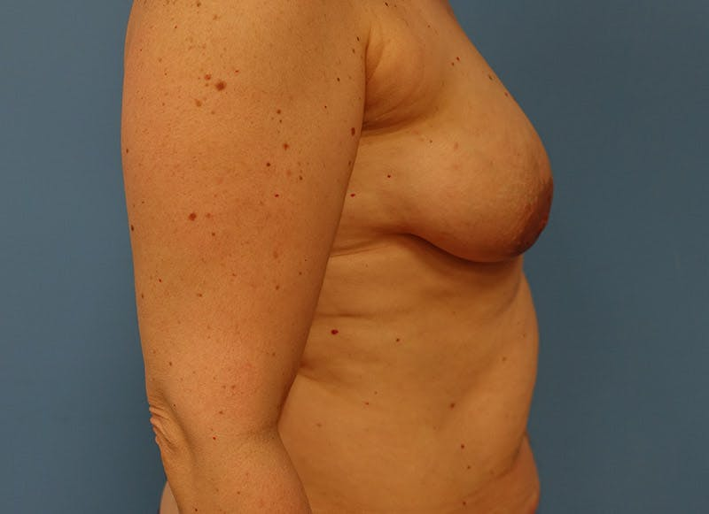 Breast Reconstruction - Implant Gallery - Patient 3833940 - Image 5
