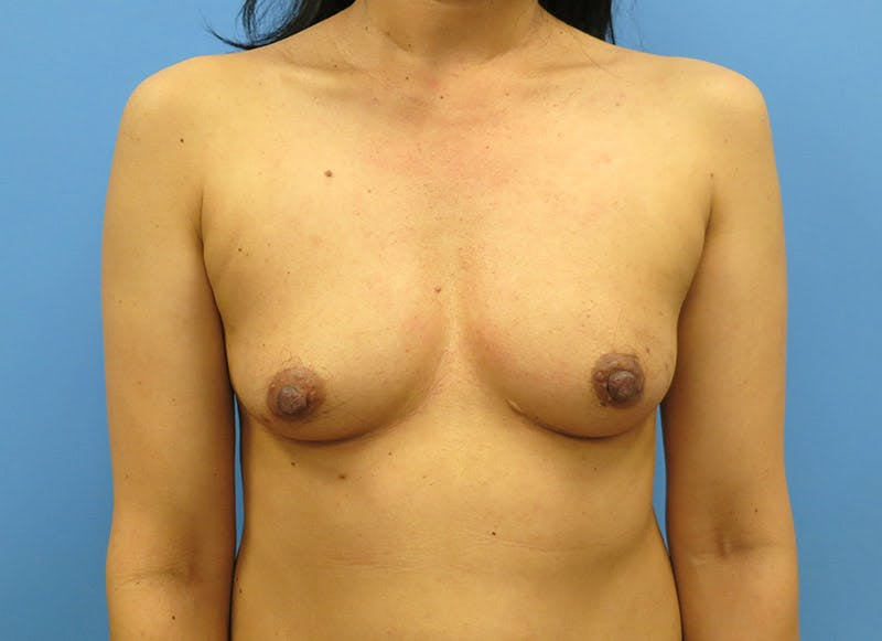 Breast Reconstruction - Implant Gallery - Patient 3833941 - Image 1