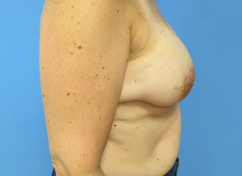 Breast Reconstruction - Implant Gallery - Patient 3833940 - Image 6