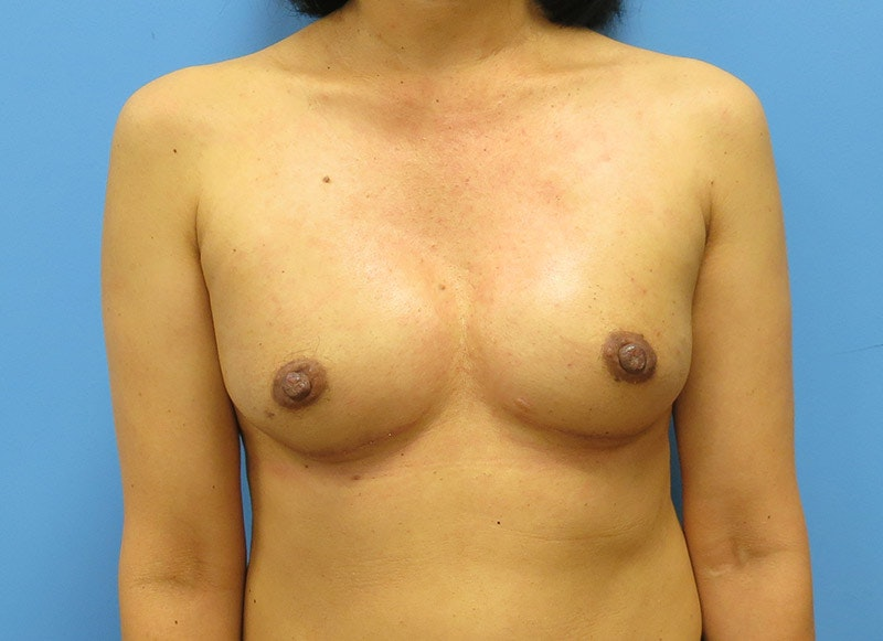 Breast Reconstruction - Implant Gallery - Patient 3833941 - Image 2