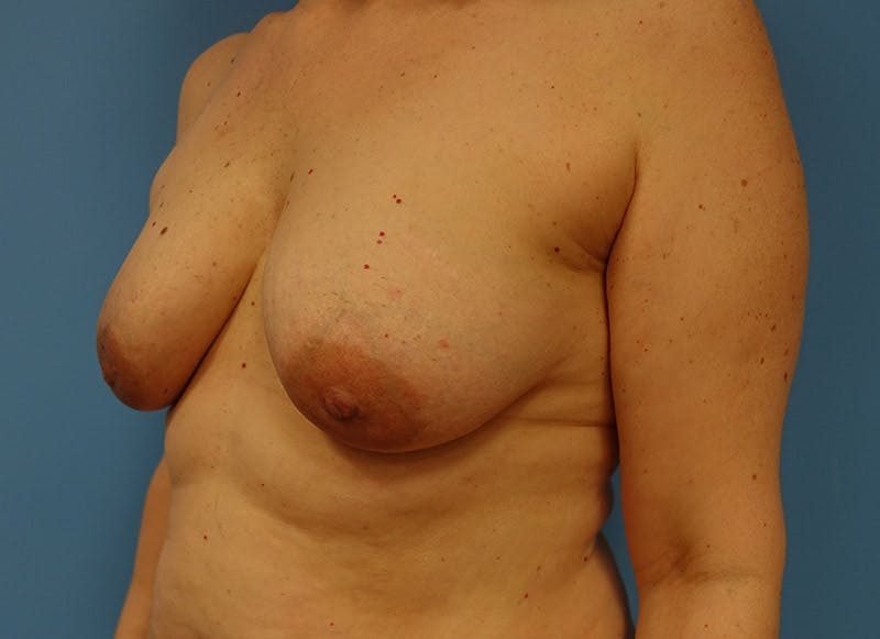 Breast Reconstruction - Implant Gallery - Patient 3833940 - Image 7