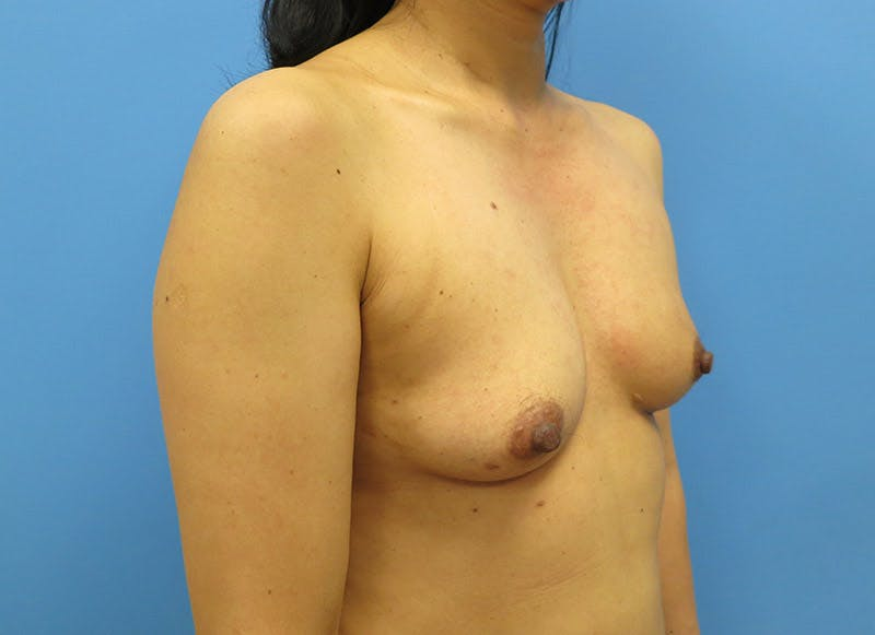Breast Reconstruction - Implant Gallery - Patient 3833941 - Image 3