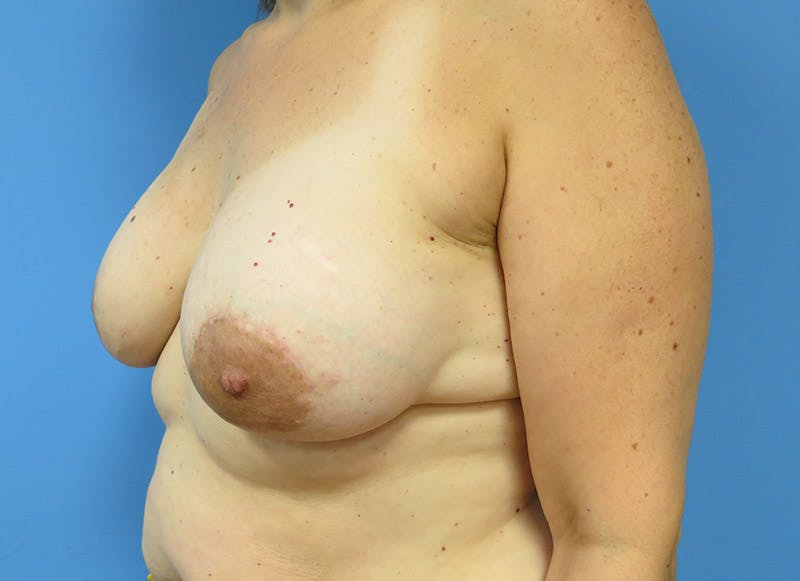 Breast Reconstruction - Implant Gallery - Patient 3833940 - Image 8