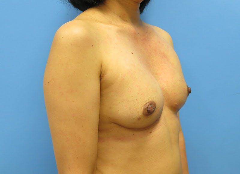 Breast Reconstruction - Implant Gallery - Patient 3833941 - Image 4