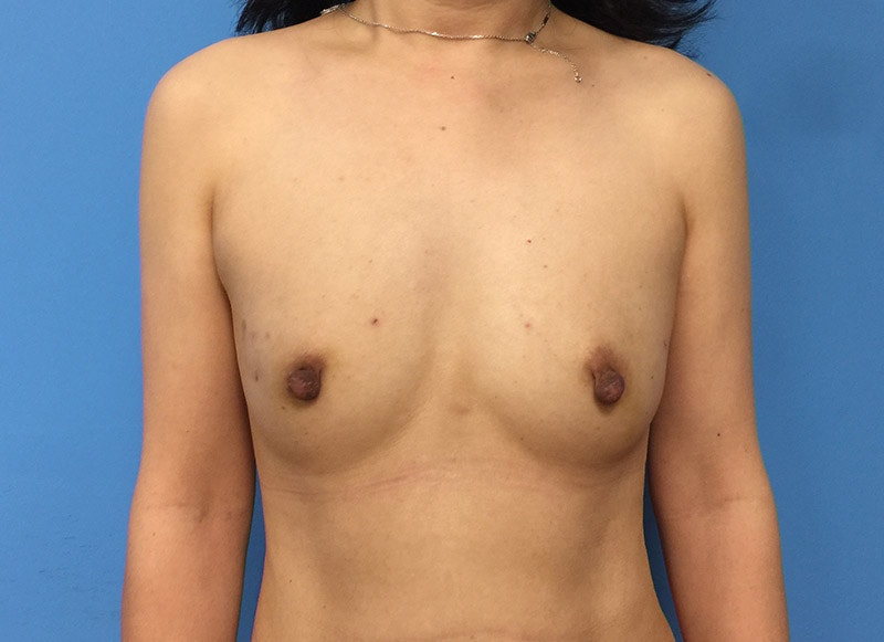 Breast Reconstruction - Implant Gallery - Patient 3833942 - Image 1