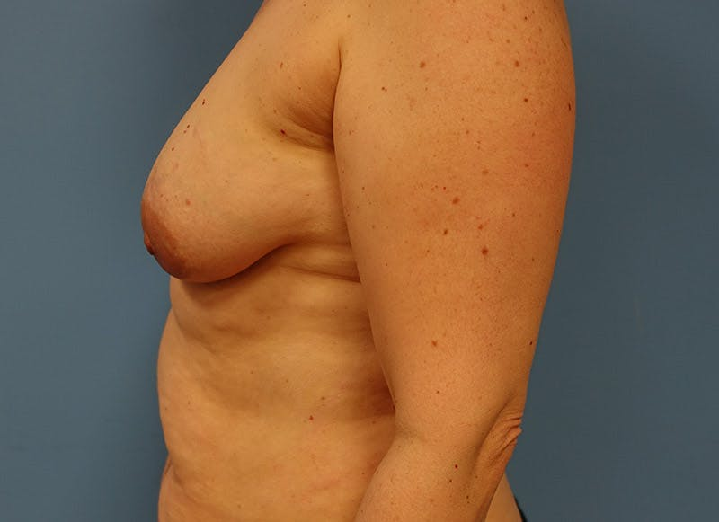 Breast Reconstruction - Implant Gallery - Patient 3833940 - Image 9