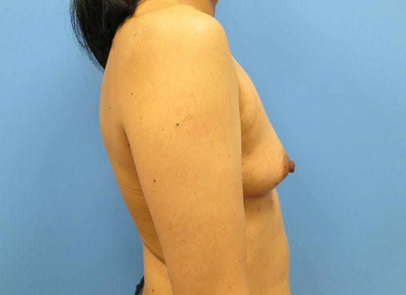 Breast Reconstruction - Implant Gallery - Patient 3833941 - Image 5