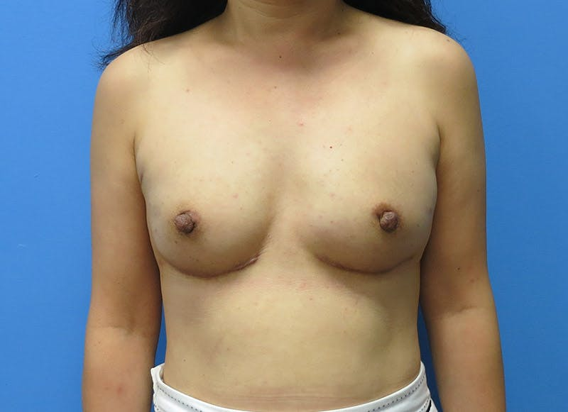 Breast Reconstruction - Implant Gallery - Patient 3833942 - Image 2