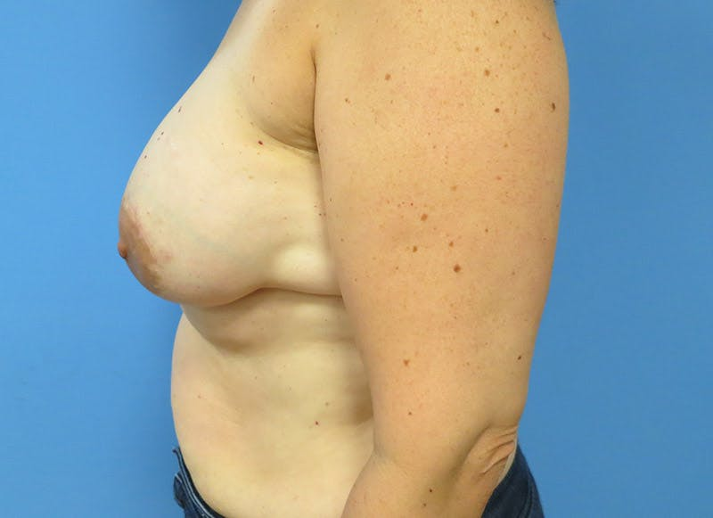 Breast Reconstruction - Implant Gallery - Patient 3833940 - Image 10
