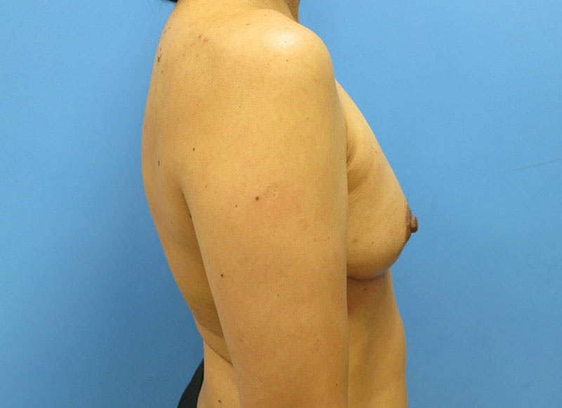 Breast Reconstruction - Implant Gallery - Patient 3833941 - Image 6