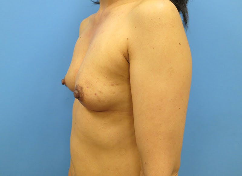 Breast Reconstruction - Implant Gallery - Patient 3833941 - Image 7