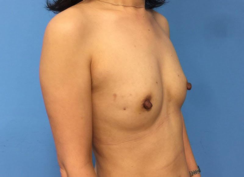 Breast Reconstruction - Implant Gallery - Patient 3833942 - Image 3