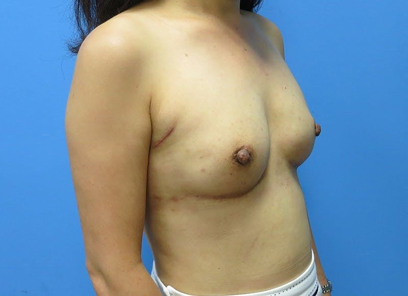 Breast Reconstruction - Implant Gallery - Patient 3833942 - Image 4
