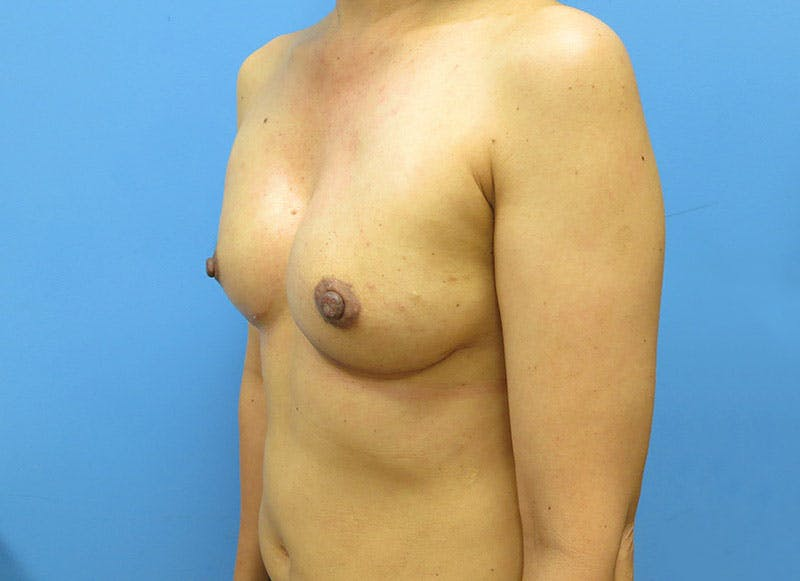 Breast Reconstruction - Implant Gallery - Patient 3833941 - Image 8