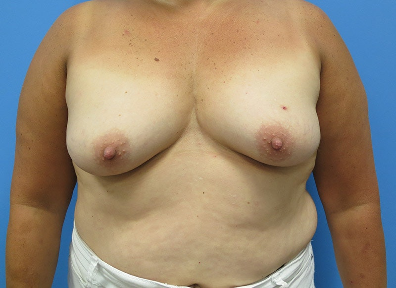 Breast Reconstruction - Implant Gallery - Patient 3833943 - Image 1