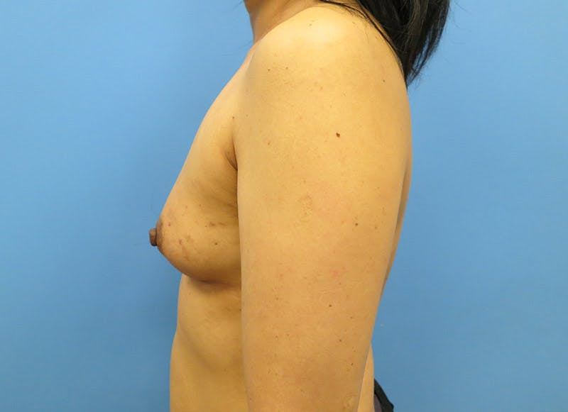 Breast Reconstruction - Implant Gallery - Patient 3833941 - Image 9