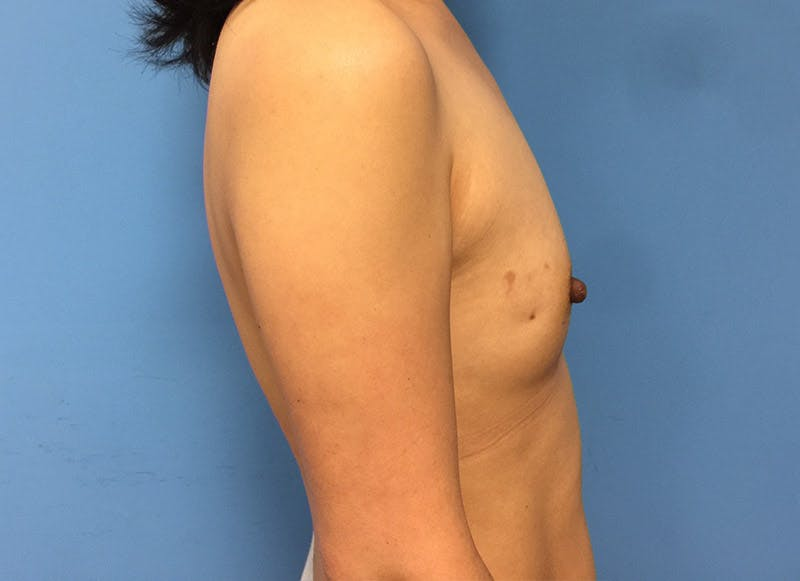 Breast Reconstruction - Implant Gallery - Patient 3833942 - Image 5