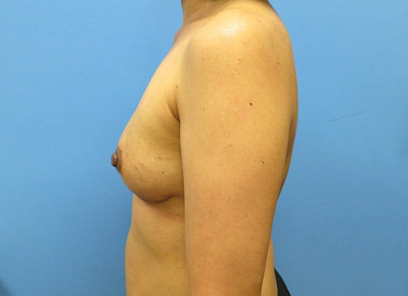 Breast Reconstruction - Implant Gallery - Patient 3833941 - Image 10