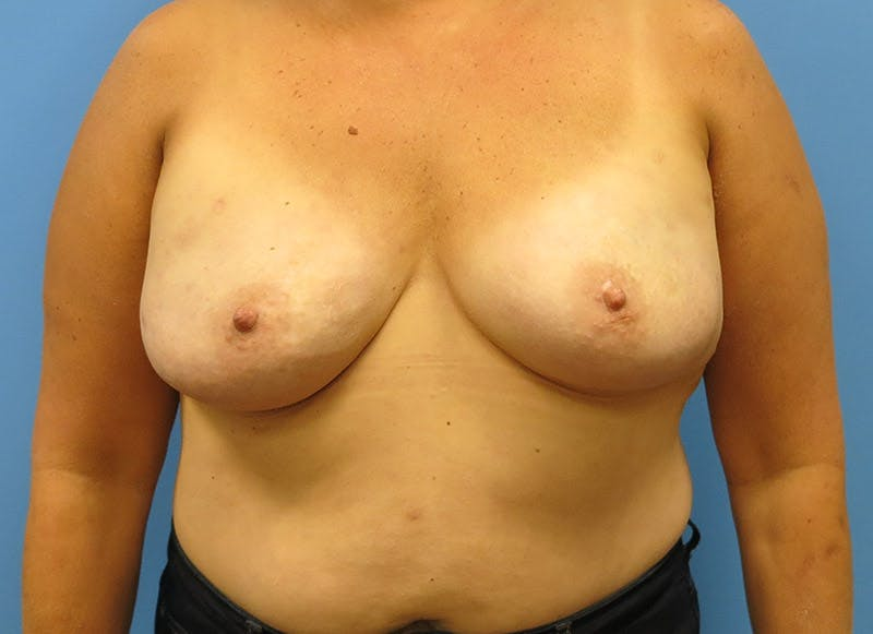 Breast Reconstruction - Implant Gallery - Patient 3833943 - Image 2