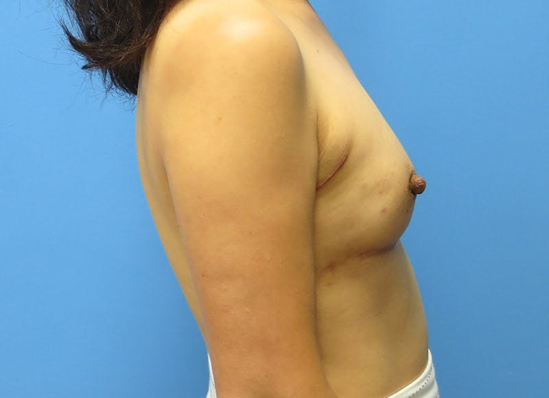 Breast Reconstruction - Implant Gallery - Patient 3833942 - Image 6