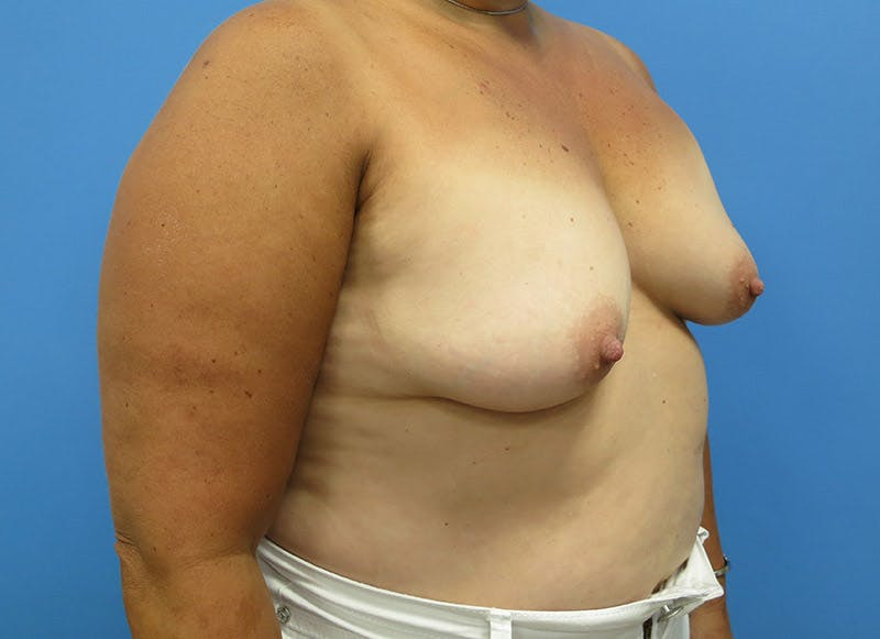 Breast Reconstruction - Implant Gallery - Patient 3833943 - Image 3