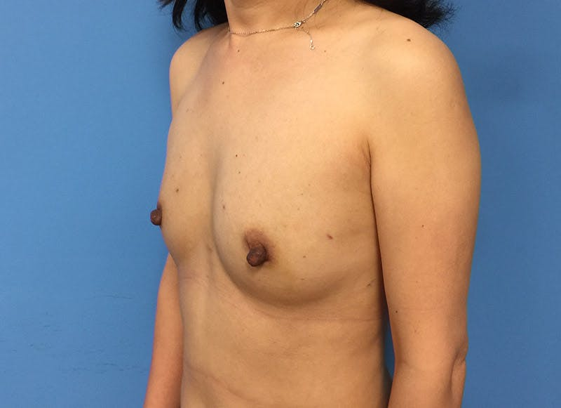 Breast Reconstruction - Implant Gallery - Patient 3833942 - Image 7
