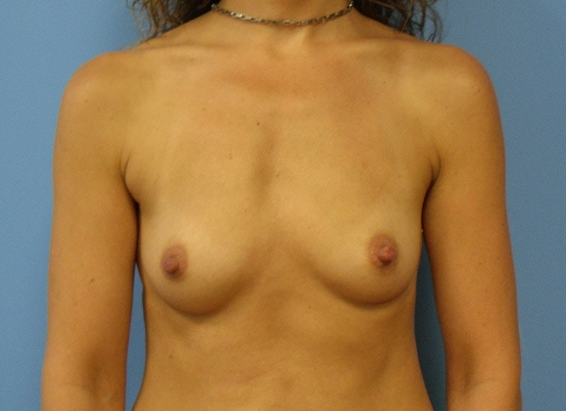 Breast Reconstruction - Implant Gallery - Patient 3833944 - Image 1