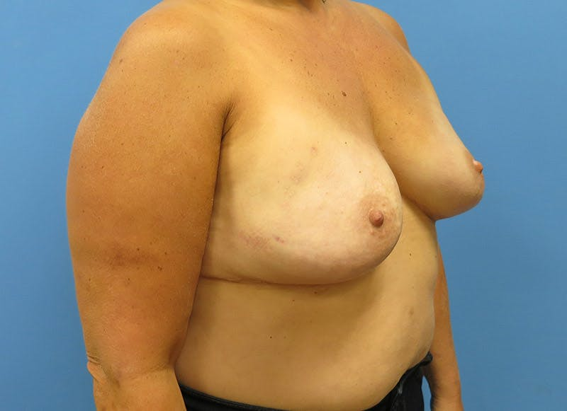 Breast Reconstruction - Implant Gallery - Patient 3833943 - Image 4