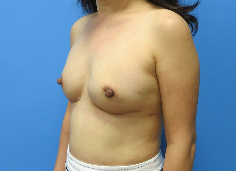 Breast Reconstruction - Implant Gallery - Patient 3833942 - Image 8