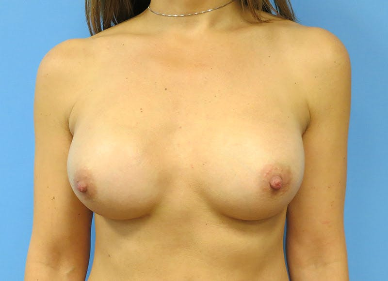 Breast Reconstruction - Implant Gallery - Patient 3833944 - Image 2