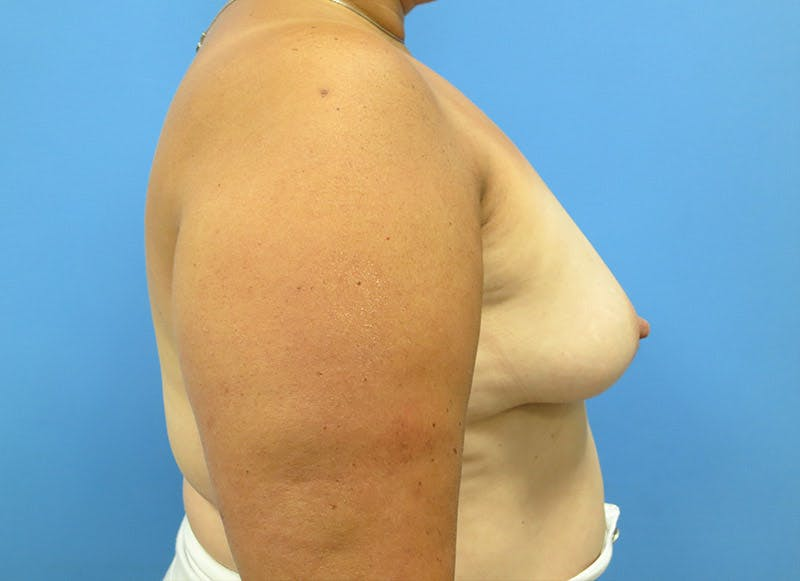 Breast Reconstruction - Implant Gallery - Patient 3833943 - Image 5