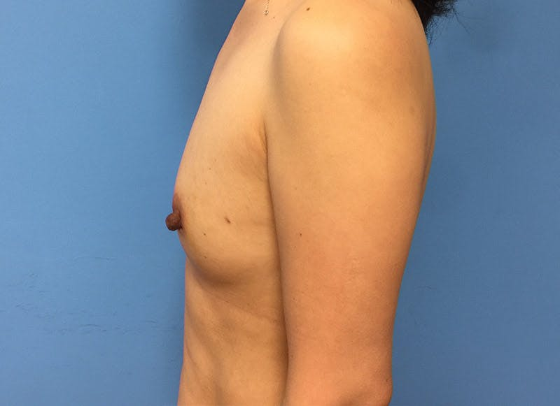Breast Reconstruction - Implant Gallery - Patient 3833942 - Image 9