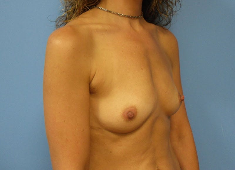 Breast Reconstruction - Implant Gallery - Patient 3833944 - Image 3