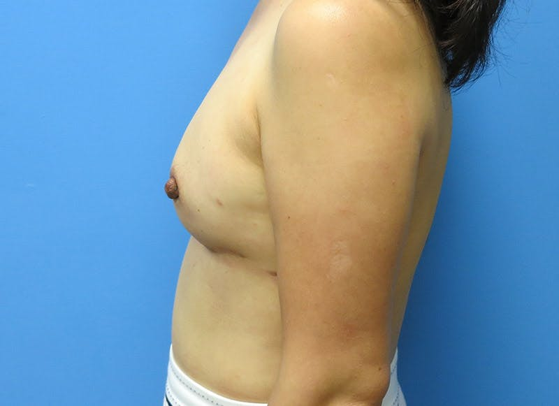 Breast Reconstruction - Implant Gallery - Patient 3833942 - Image 10