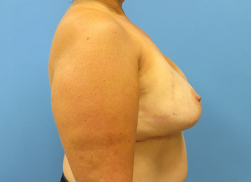 Breast Reconstruction - Implant Gallery - Patient 3833943 - Image 6