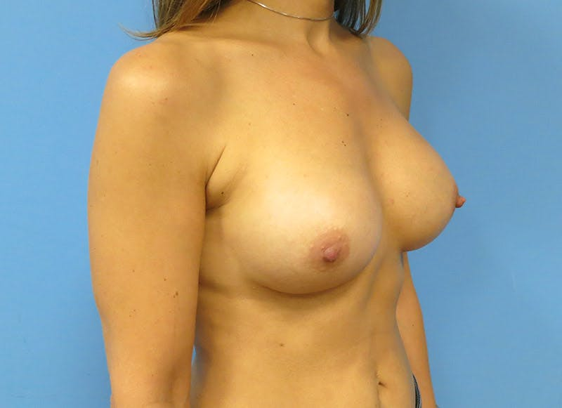 Breast Reconstruction - Implant Gallery - Patient 3833944 - Image 4