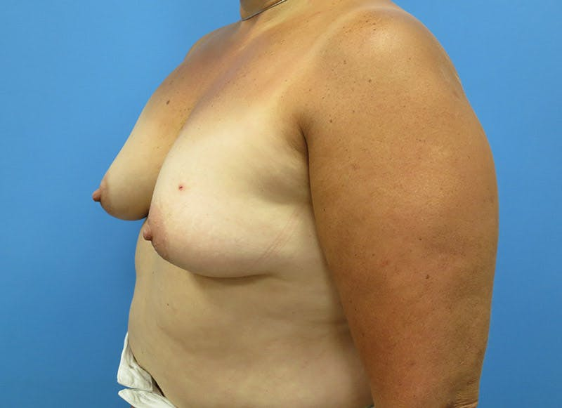 Breast Reconstruction - Implant Gallery - Patient 3833943 - Image 7