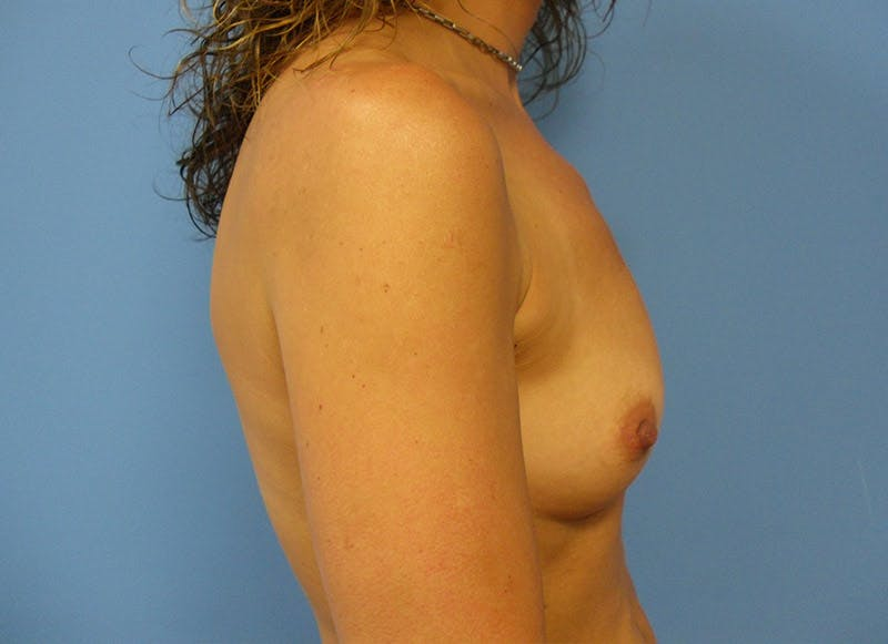 Breast Reconstruction - Implant Gallery - Patient 3833944 - Image 5