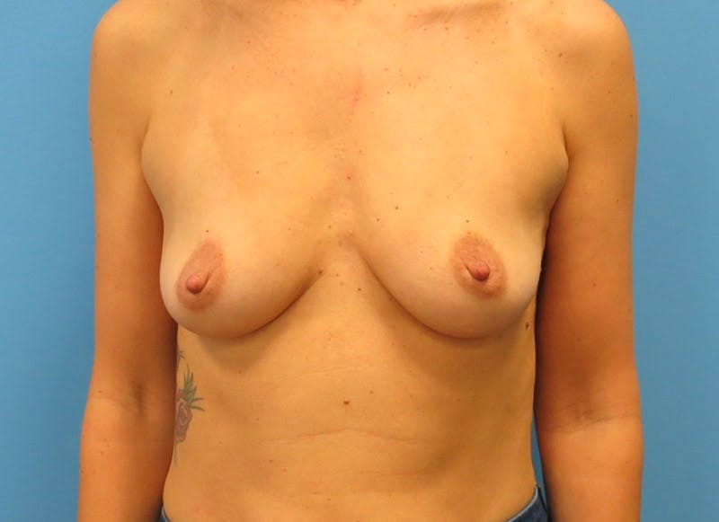 Breast Reconstruction - Implant Gallery - Patient 3833945 - Image 1