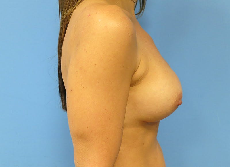 Breast Reconstruction - Implant Gallery - Patient 3833944 - Image 6