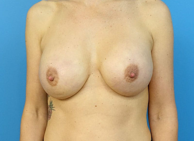 Breast Reconstruction - Implant Gallery - Patient 3833945 - Image 2