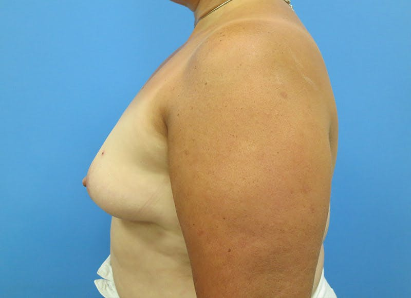 Breast Reconstruction - Implant Gallery - Patient 3833943 - Image 9