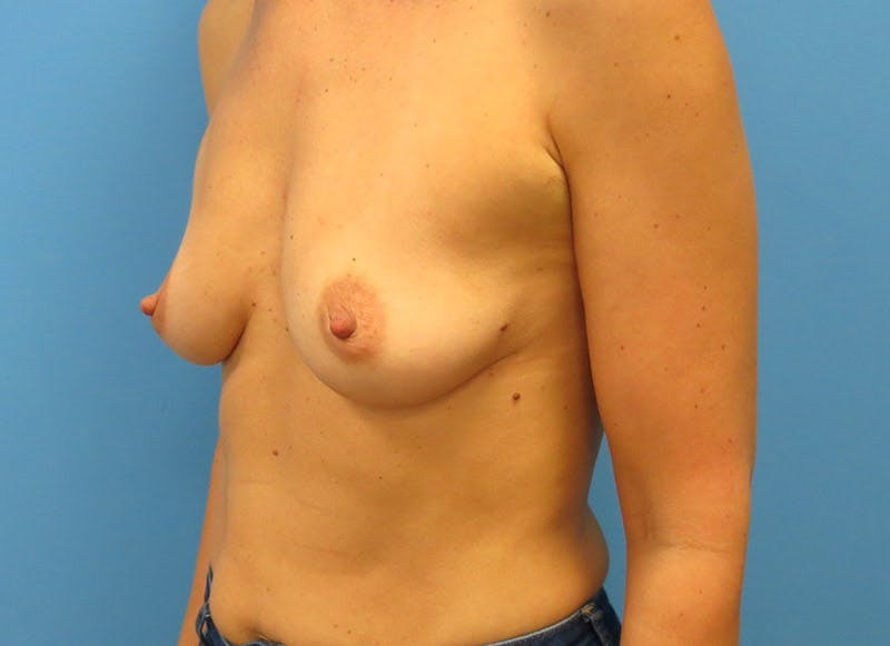 Breast Reconstruction - Implant Gallery - Patient 3833945 - Image 3