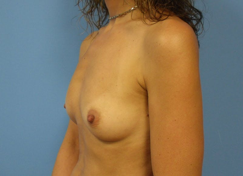 Breast Reconstruction - Implant Gallery - Patient 3833944 - Image 7