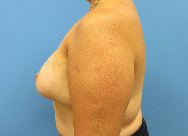 Breast Reconstruction - Implant Gallery - Patient 3833943 - Image 10