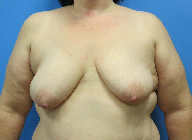 Breast Reconstruction - Implant Gallery - Patient 3833946 - Image 1
